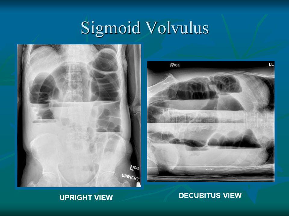 Sigmoid Volvulus DECUBITUS VIEW UPRIGHT VIEW