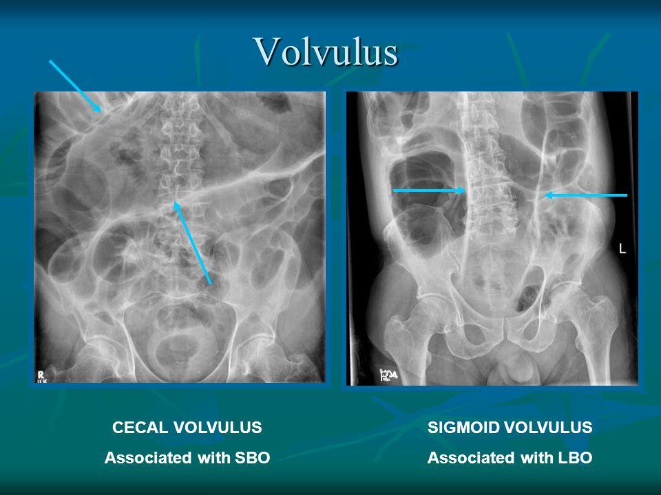 Volvulus CECAL VOLVULUS Associated with SBO SIGMOID VOLVULUS