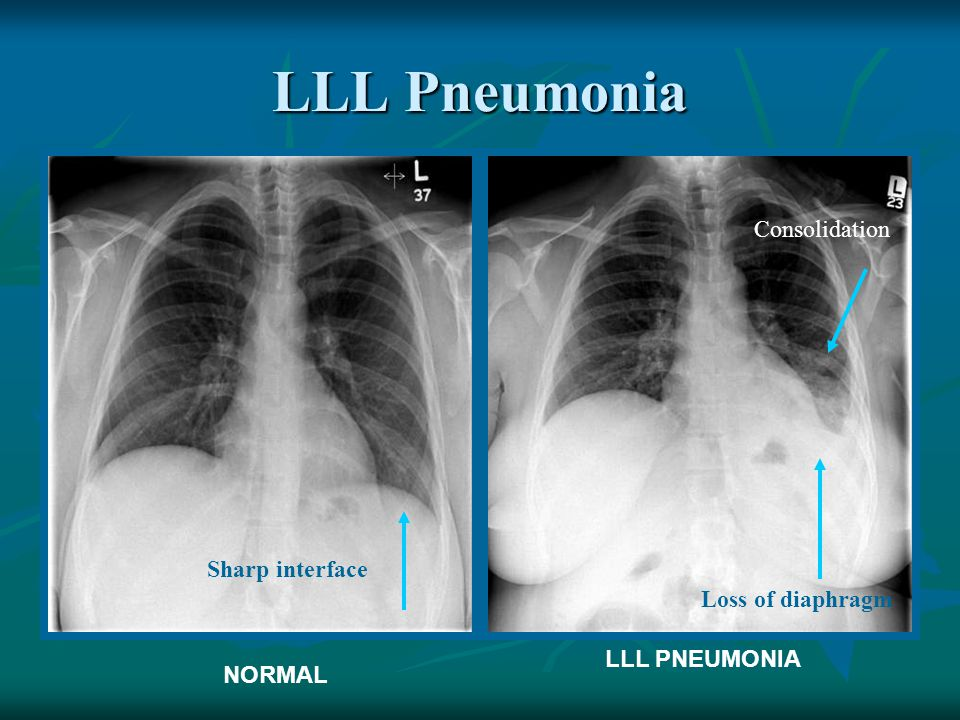 LLL Pneumonia Consolidation Sharp interface Loss of diaphragm