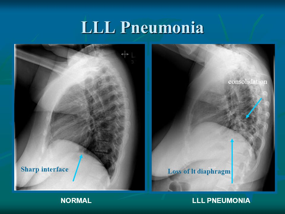 LLL Pneumonia consolidation Sharp interface Loss of lt diaphragm