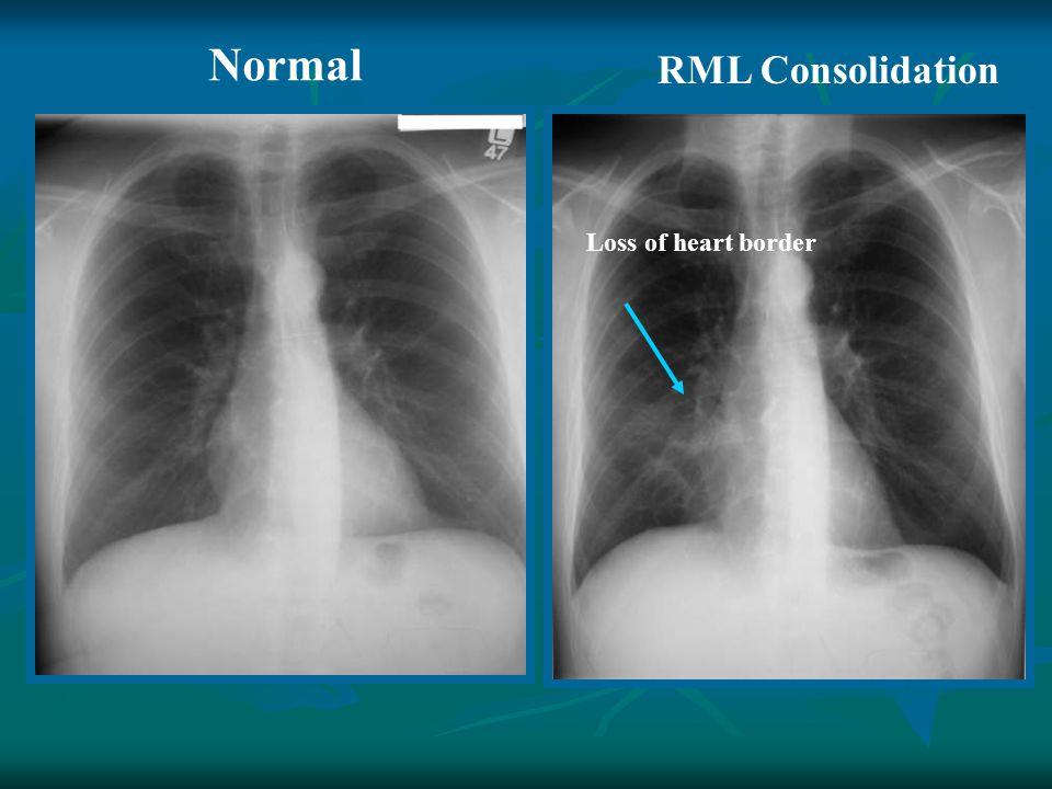 Normal RML Consolidation Loss of heart border