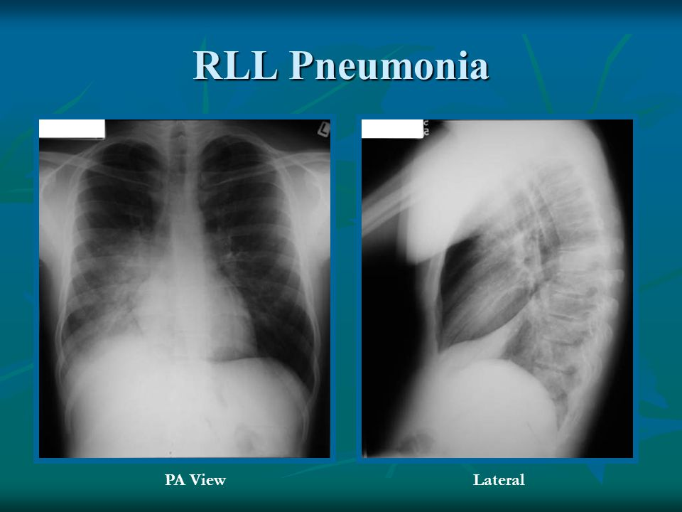 RLL Pneumonia PA View Lateral