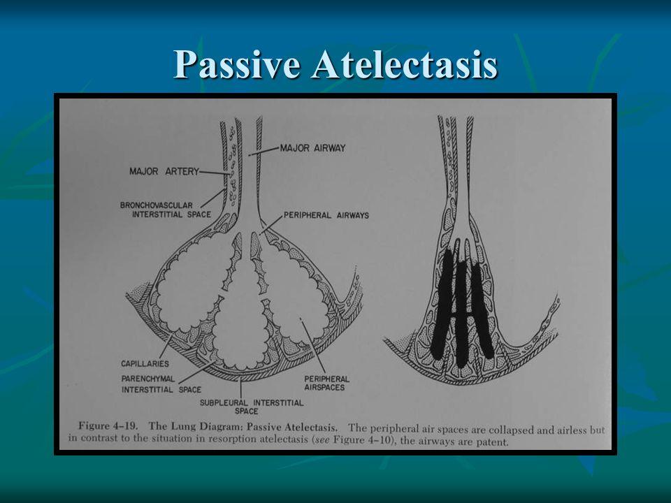 Passive Atelectasis