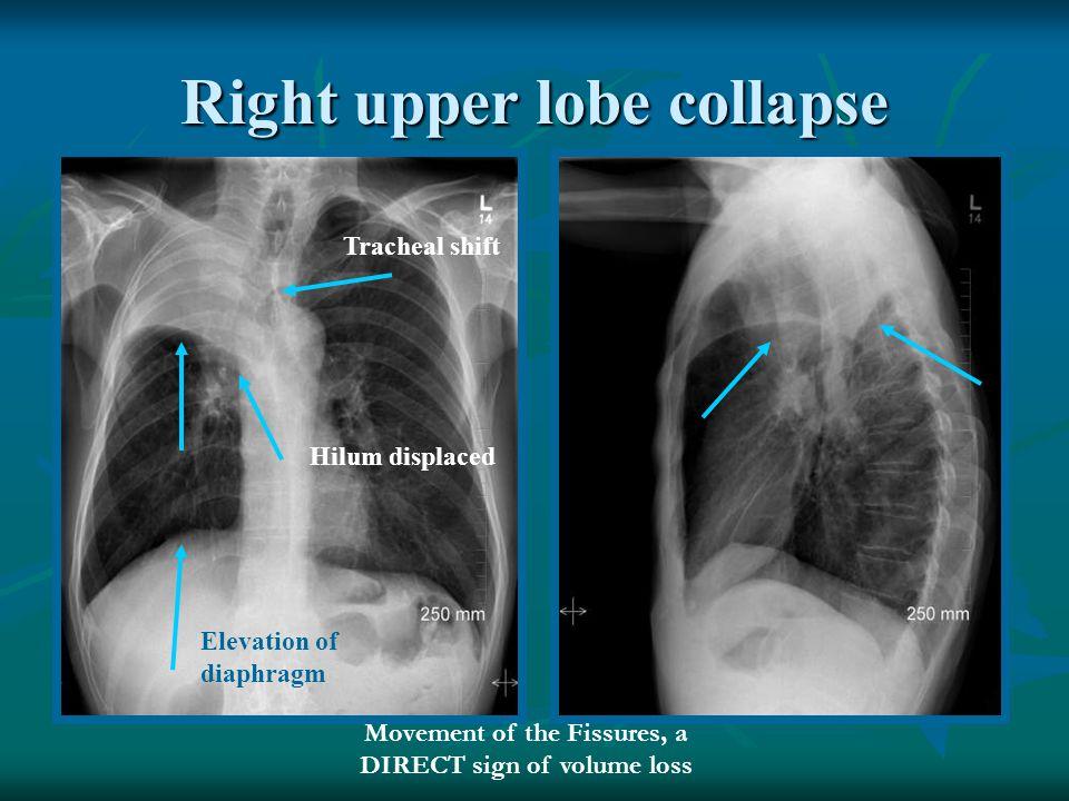 Right upper lobe collapse
