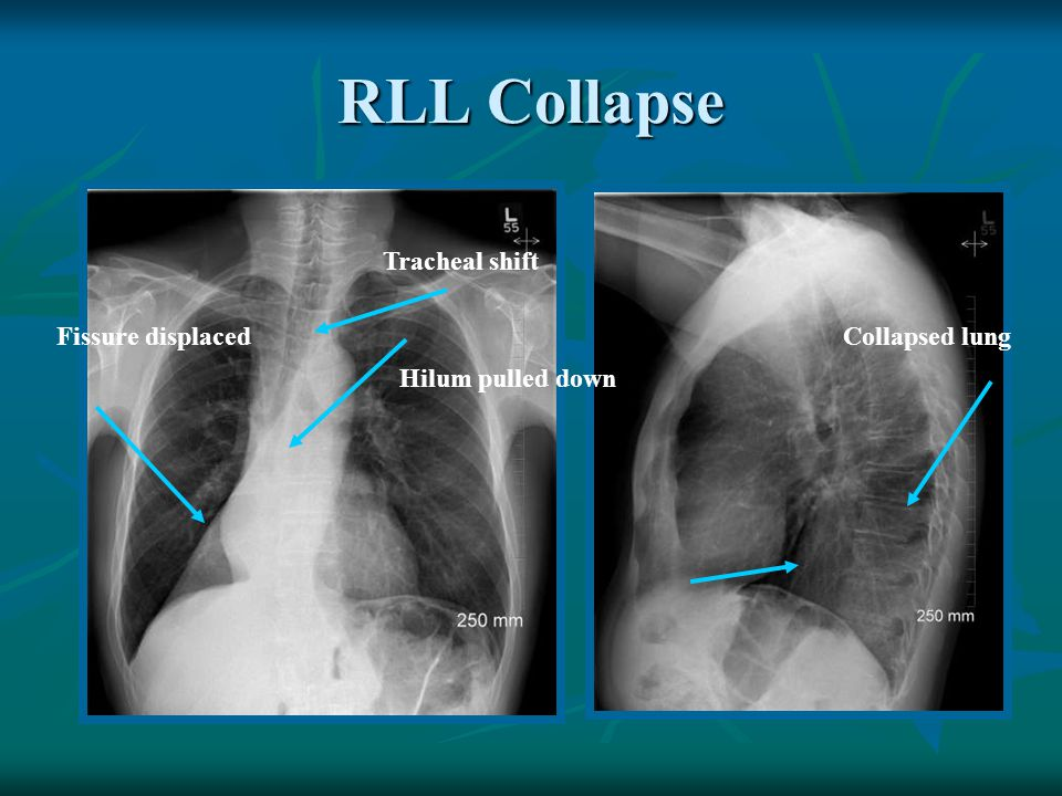 RLL Collapse Tracheal shift Fissure displaced Collapsed lung