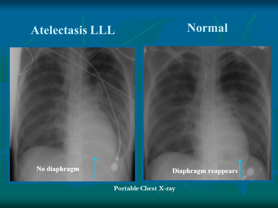 Normal Atelectasis LLL