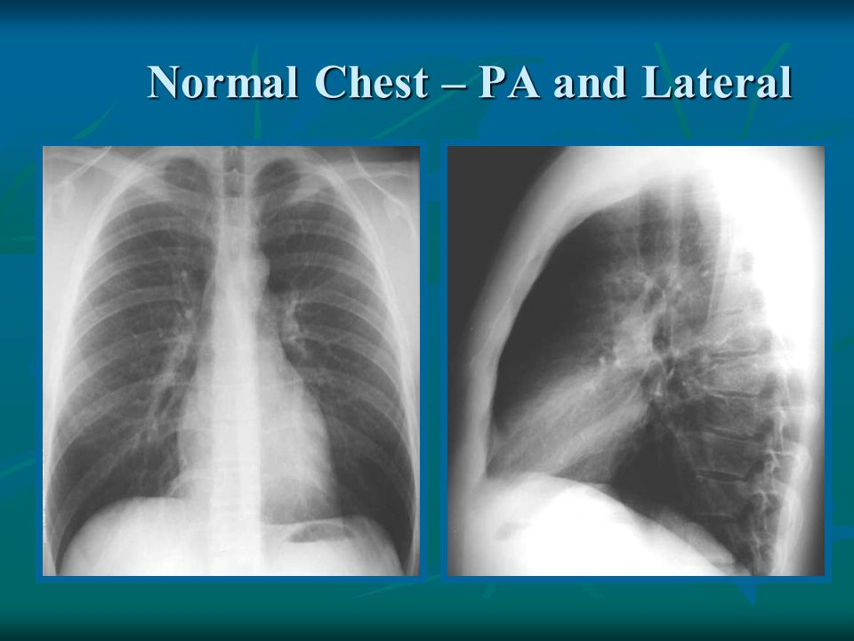 Normal Chest – PA and Lateral
