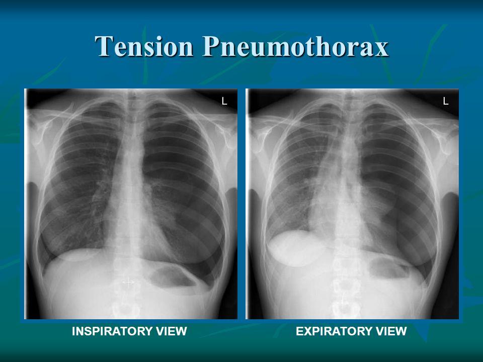 Tension Pneumothorax INSPIRATORY VIEW EXPIRATORY VIEW