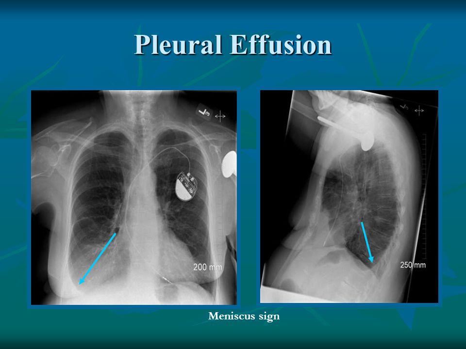 Pleural Effusion Meniscus sign