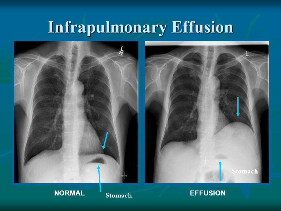 Infrapulmonary Effusion