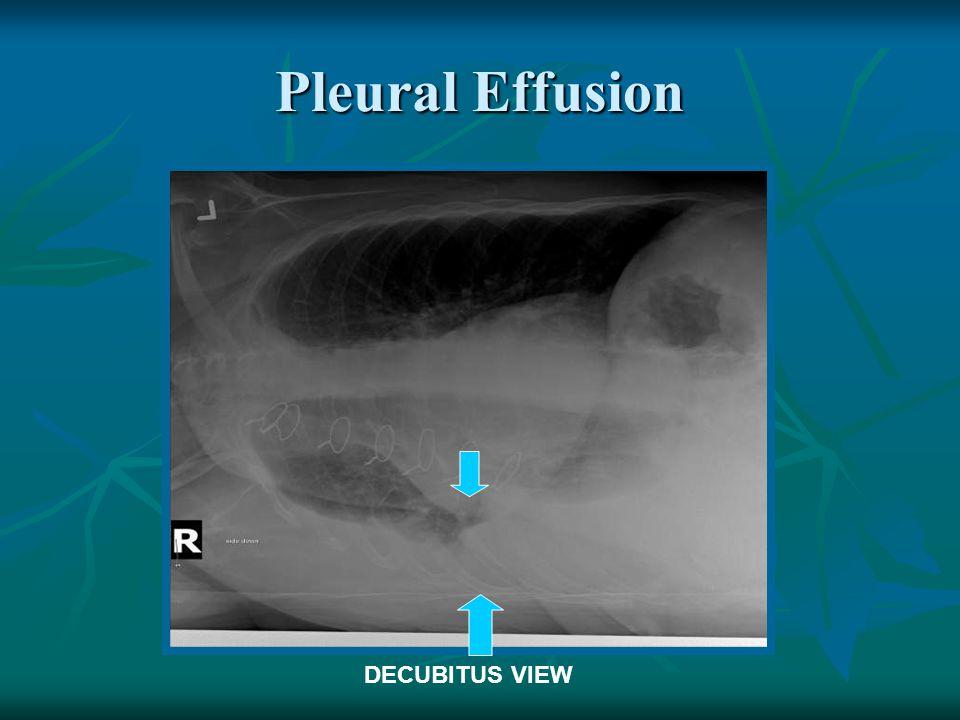 Pleural Effusion DECUBITUS VIEW