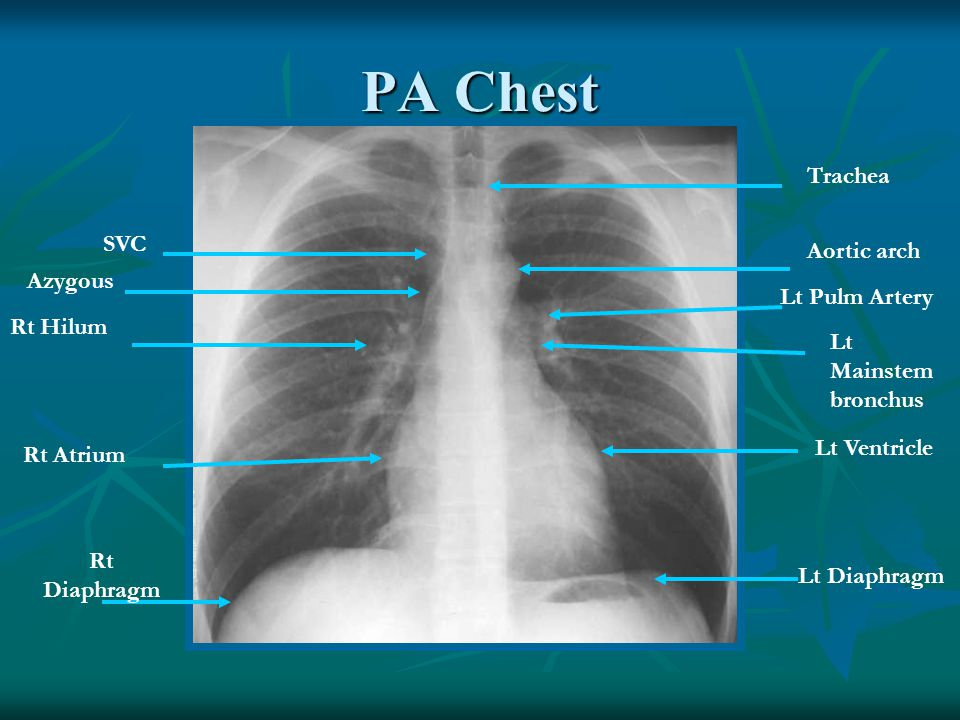 PA Chest Trachea SVC Aortic arch Azygous Lt Pulm Artery Rt Hilum