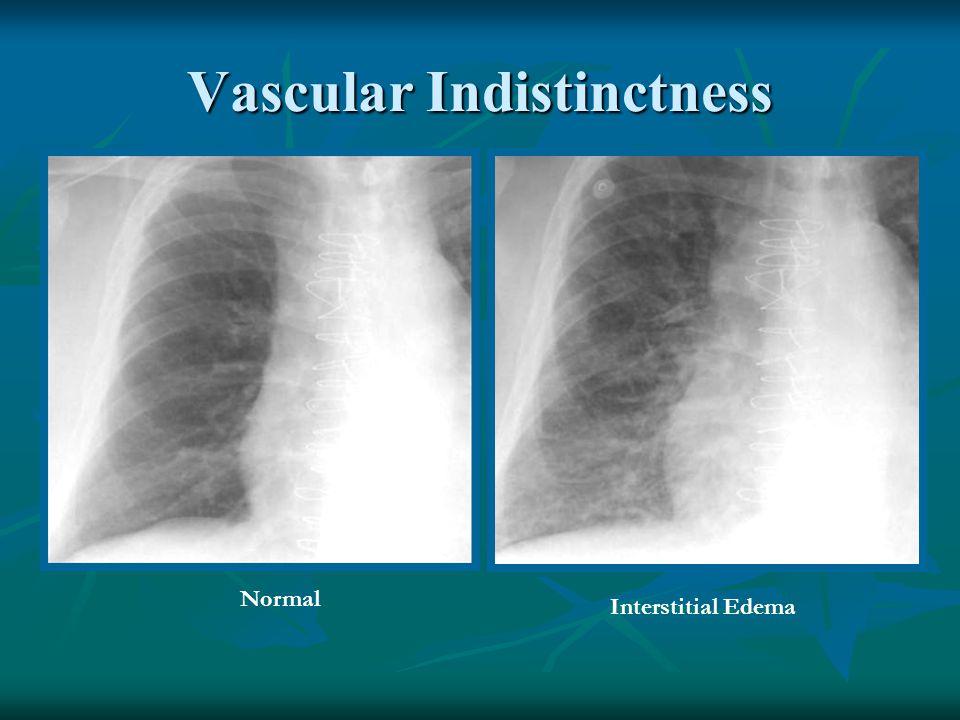 Vascular Indistinctness