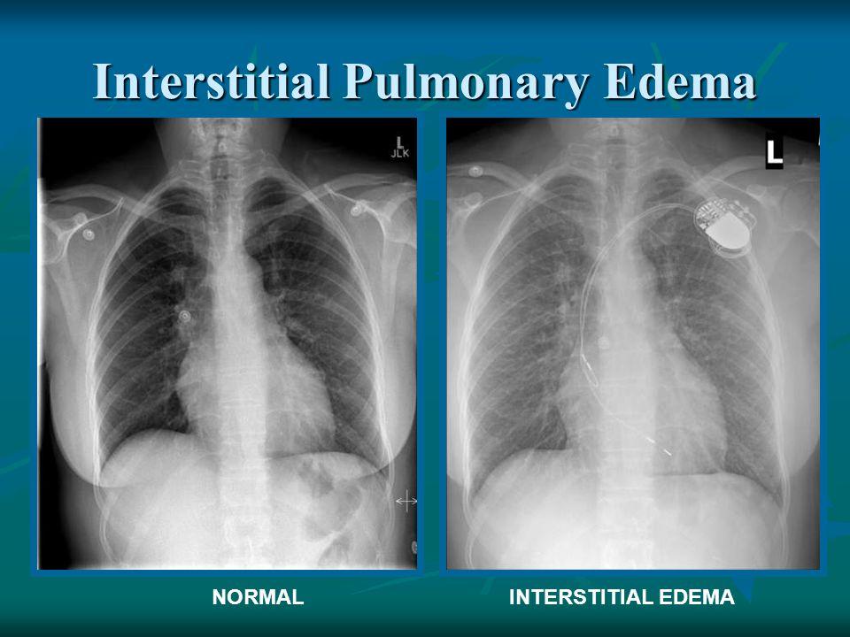 Interstitial Pulmonary Edema