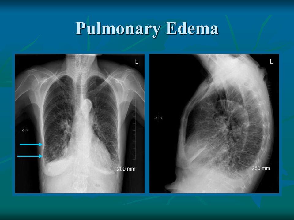 Viagra And Pulmonary Conditions