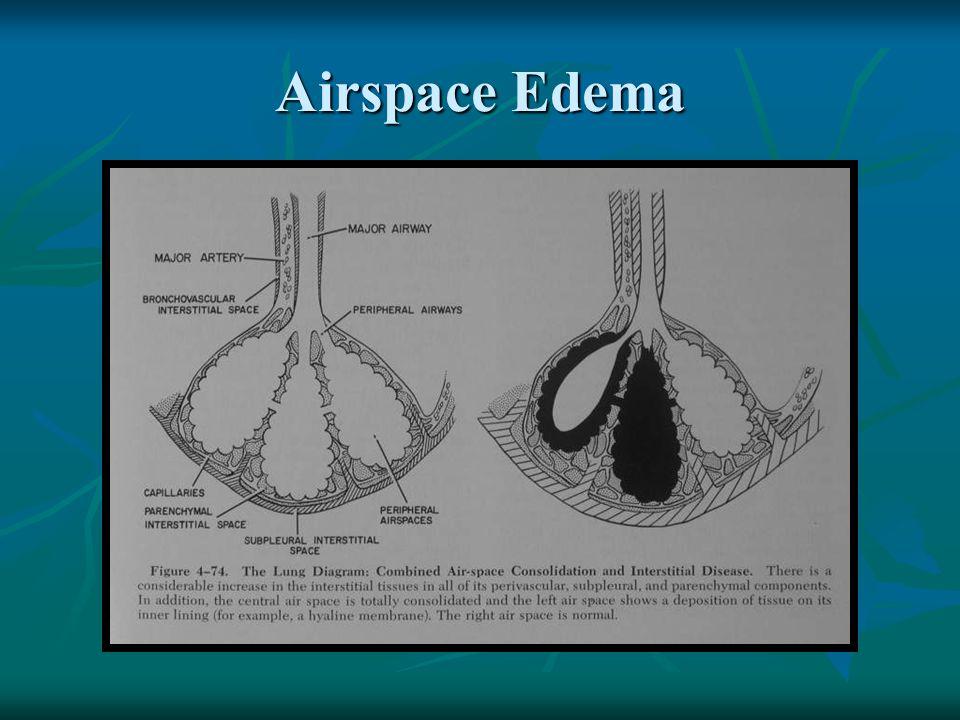 Airspace Edema