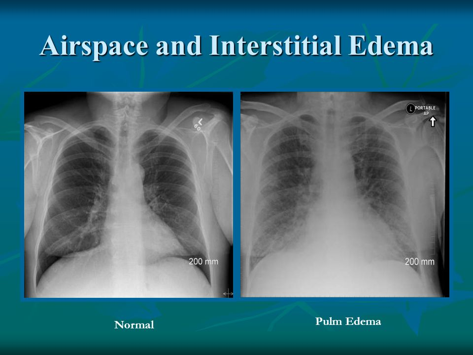 Airspace and Interstitial Edema