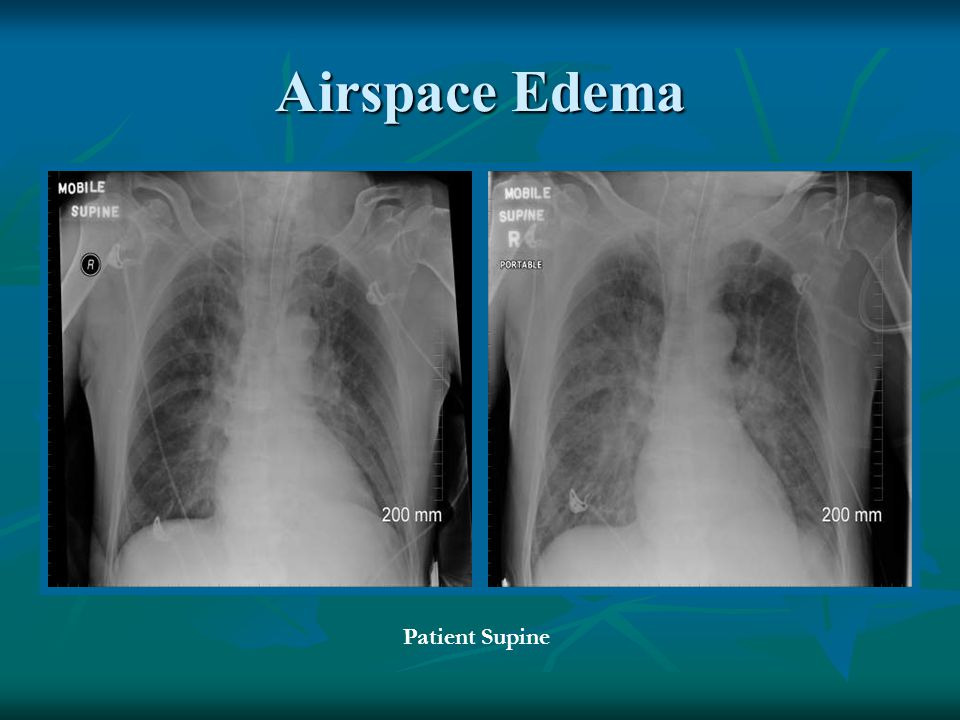 Airspace Edema Patient Supine