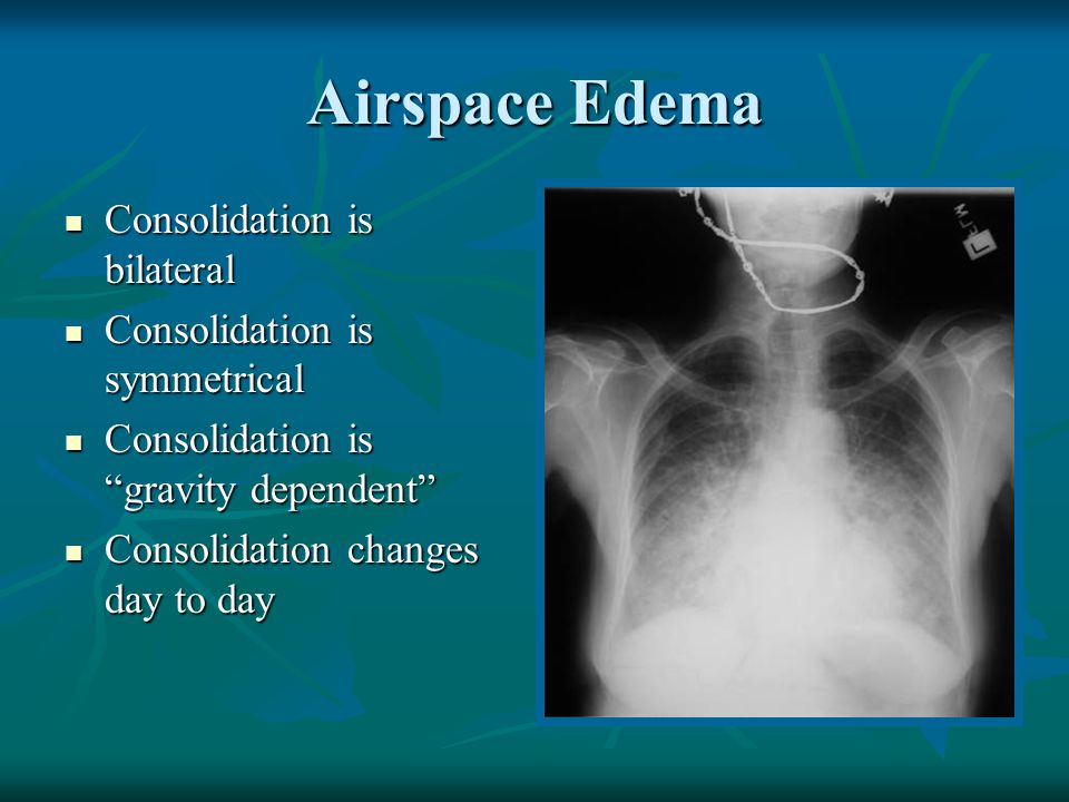 Airspace Edema Consolidation is bilateral Consolidation is symmetrical