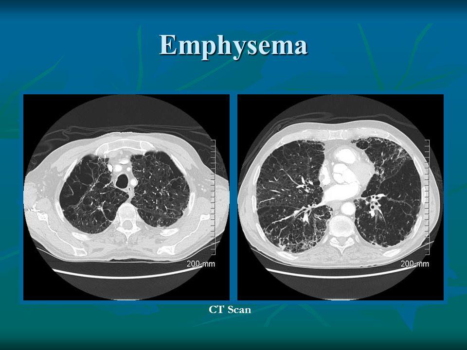 Emphysema CT Scan