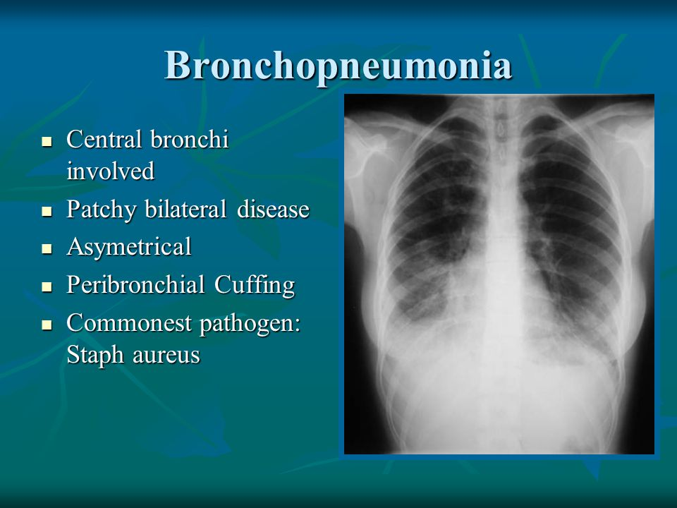 Bronchopneumonia Central bronchi involved Patchy bilateral disease