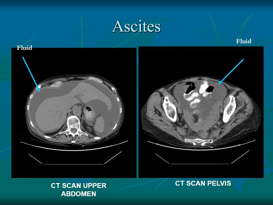 Ascites Fluid Fluid CT SCAN PELVIS CT SCAN UPPER ABDOMEN