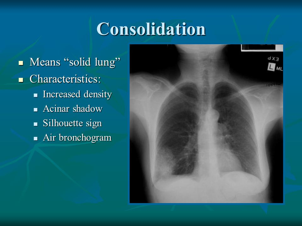 Consolidation Means solid lung Characteristics: Increased density