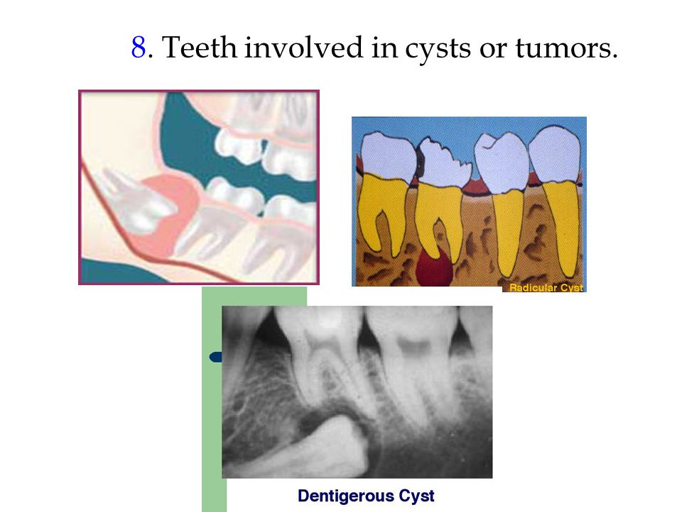 8. Teeth involved in cysts or tumors.
