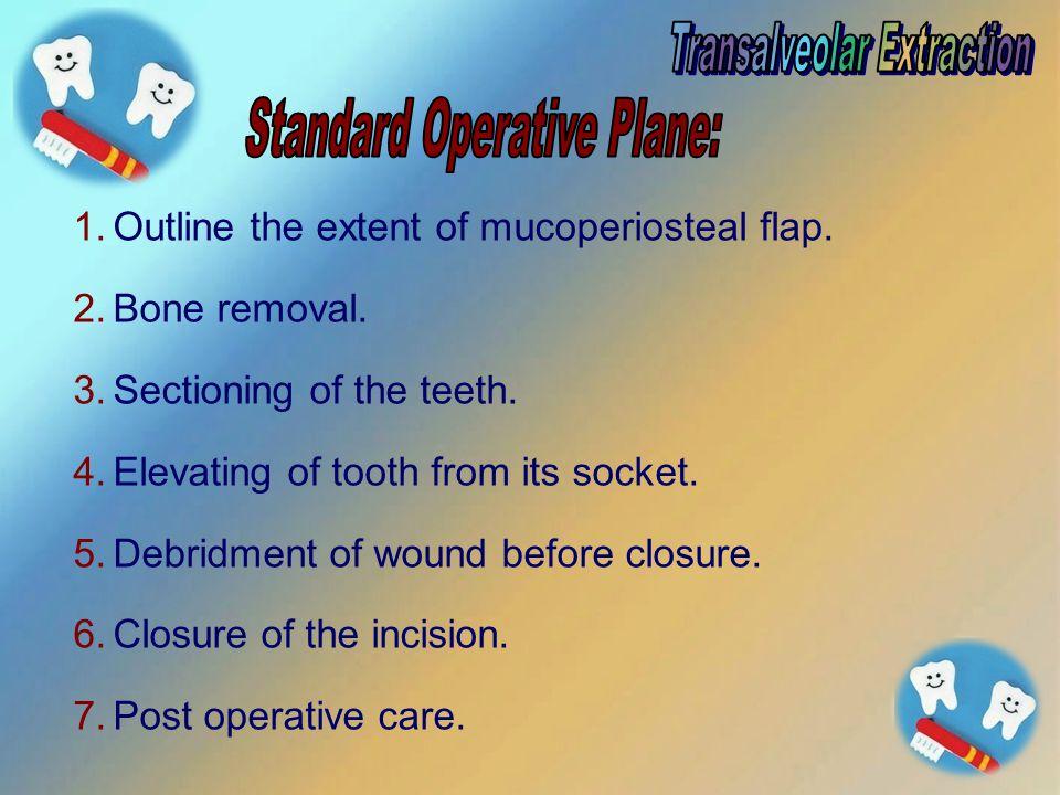 Transalveolar Extraction Standard Operative Plane: