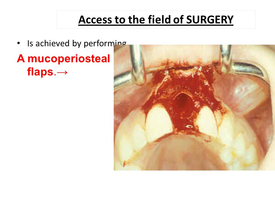 Access to the field of SURGERY