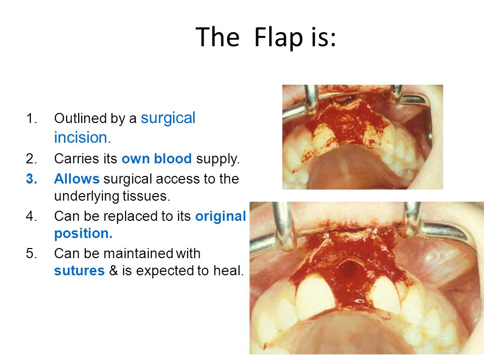 The Flap is: Outlined by a surgical incision.