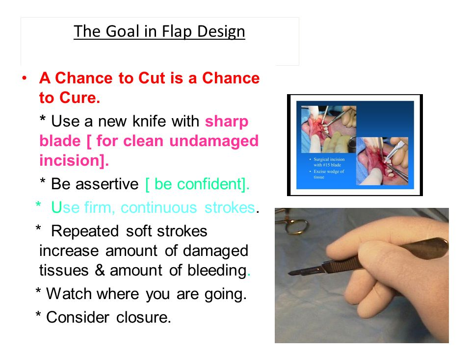 The Goal in Flap Design A Chance to Cut is a Chance to Cure.