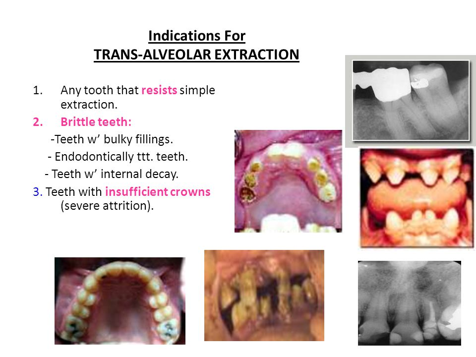 Indications For TRANS-ALVEOLAR EXTRACTION