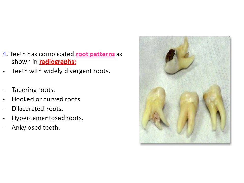 4. Teeth has complicated root patterns as shown in radiographs: