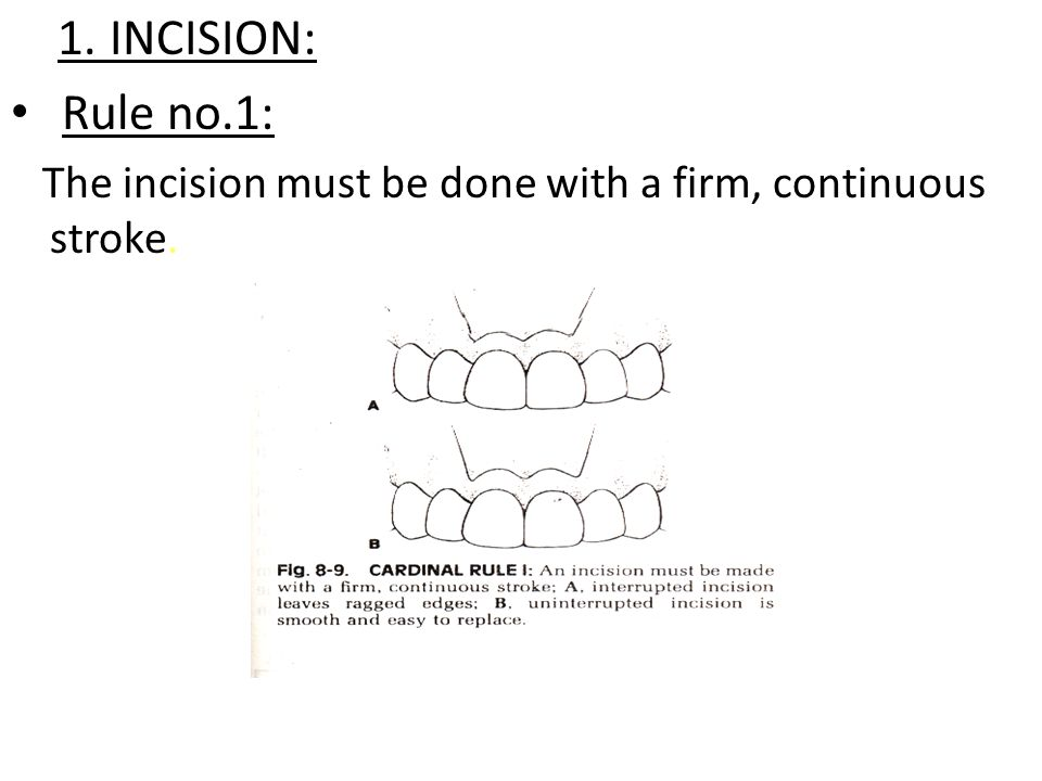 1. INCISION: Rule no.1: The incision must be done with a firm, continuous stroke.