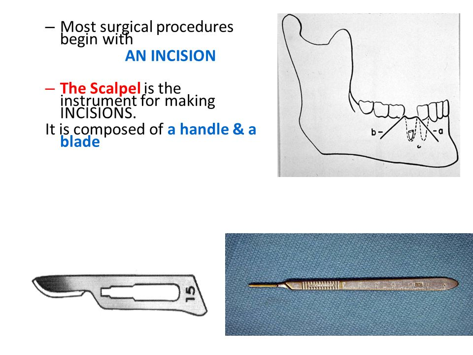 Most surgical procedures begin with