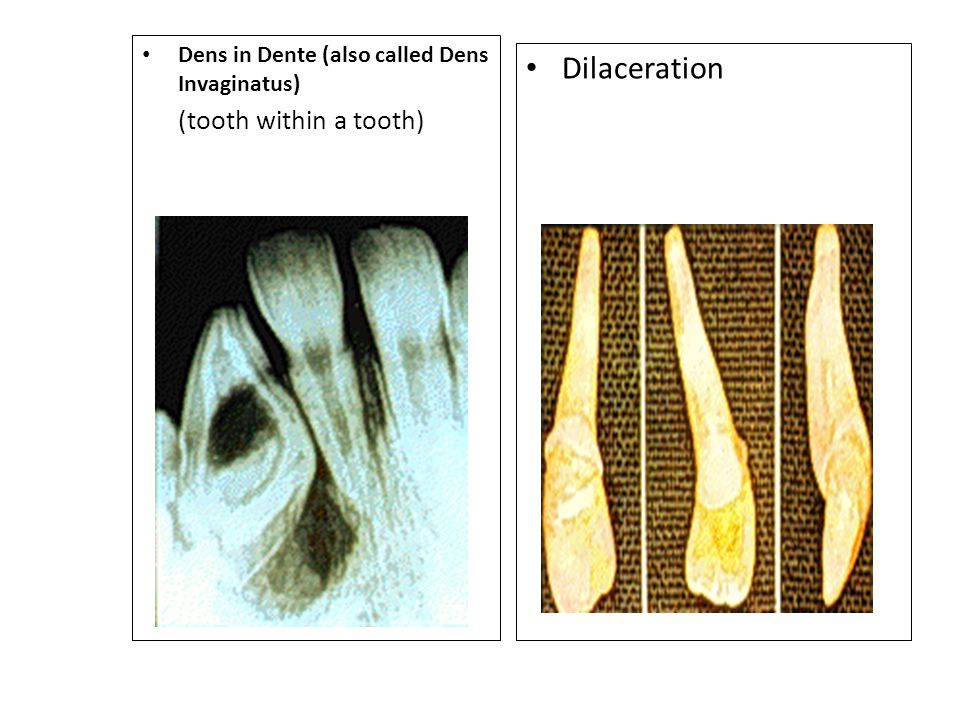 Dens in Dente (also called Dens Invaginatus) (tooth within a tooth)