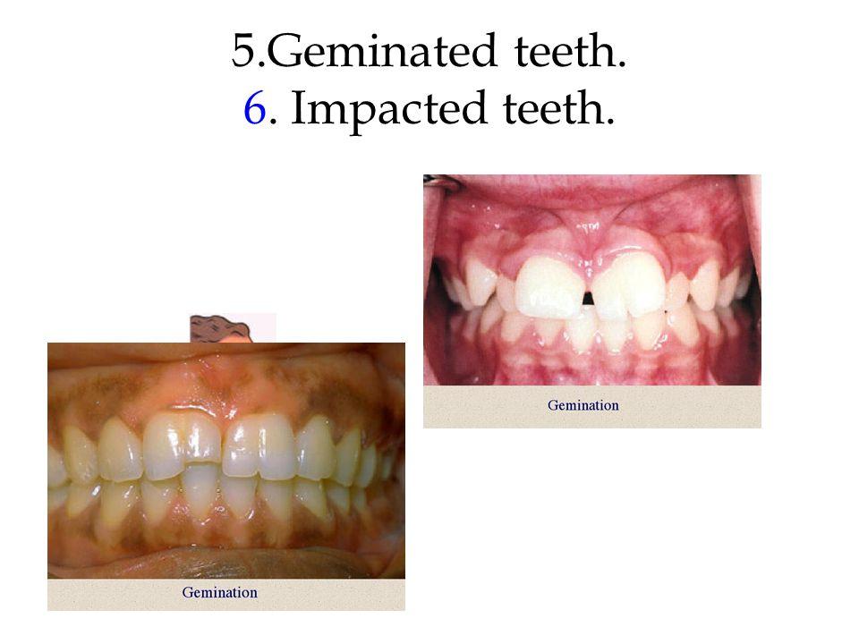 5.Geminated teeth. 6. Impacted teeth.