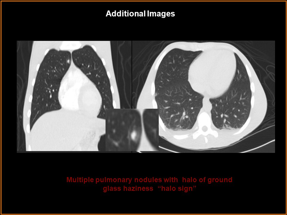 Additional Images Multiple pulmonary nodules with halo of ground glass haziness halo sign