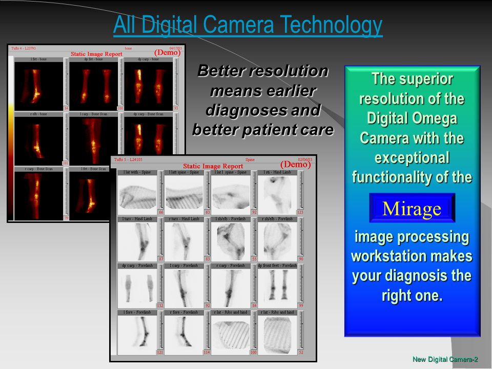 All Digital Camera Technology