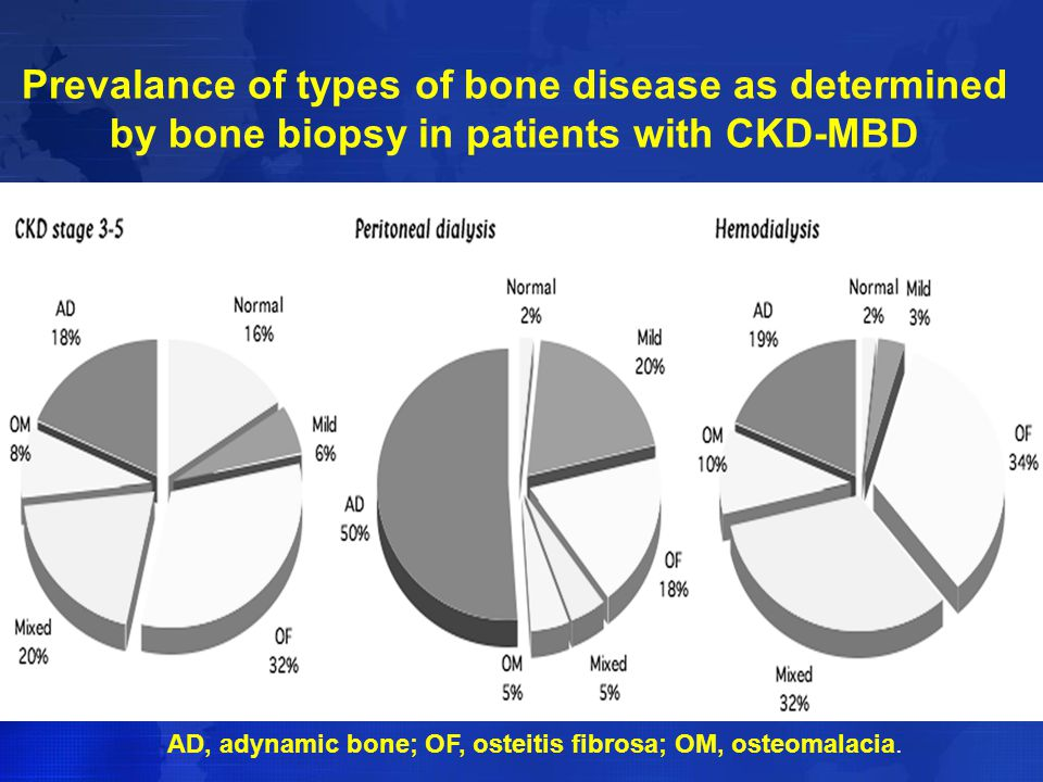 Prevalance of types of bone disease as determined by bone biopsy in patients with CKD-MBD