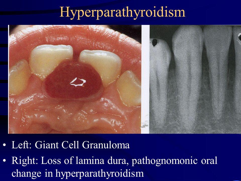 Hyperparathyroidism Left: Giant Cell Granuloma