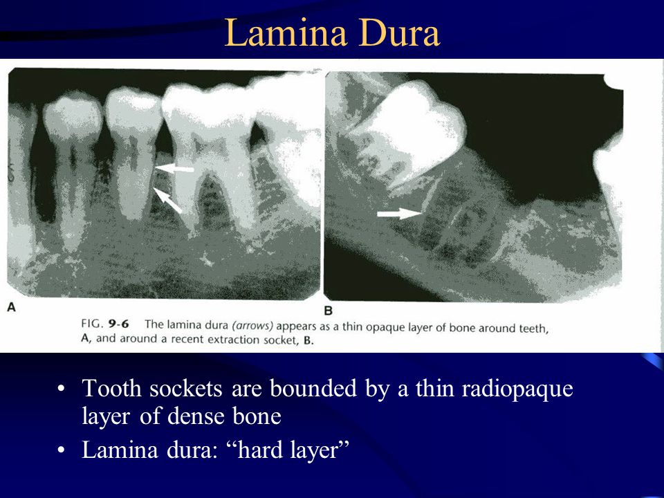 Lamina Dura Tooth sockets are bounded by a thin radiopaque layer of dense bone.