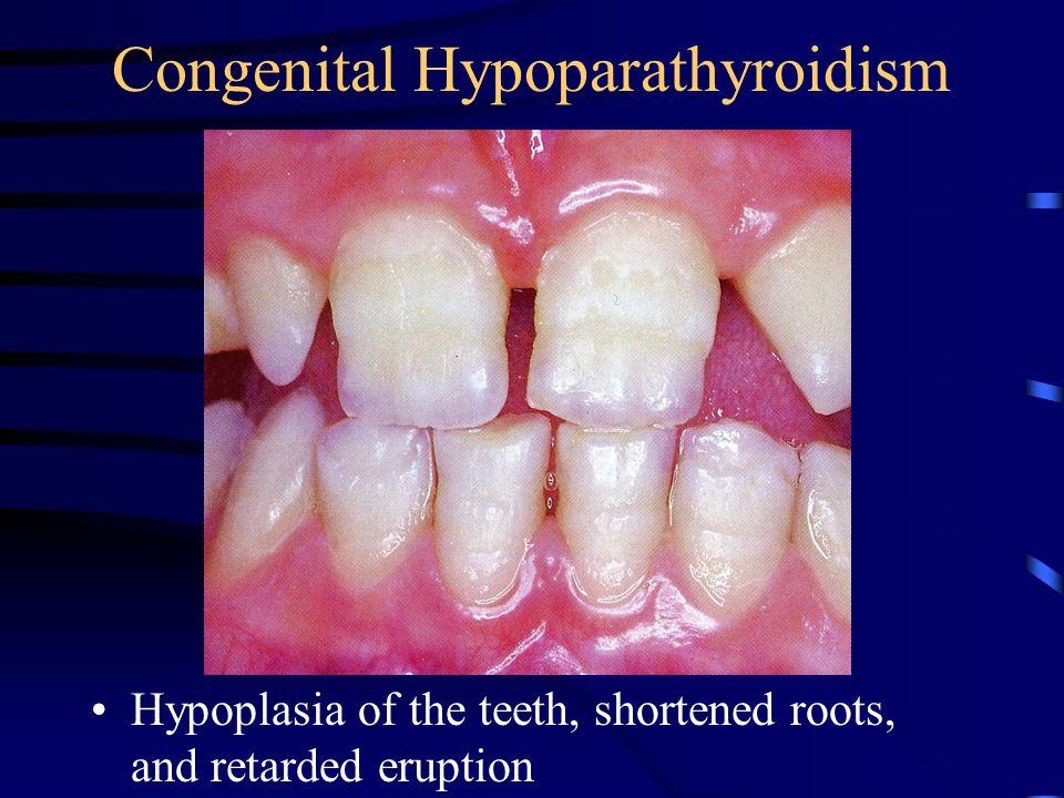 Congenital Hypoparathyroidism