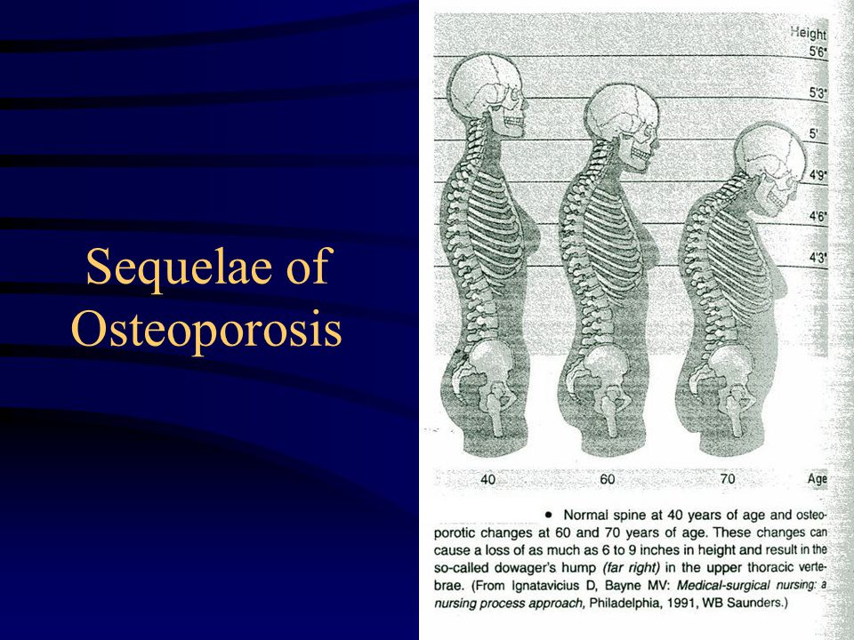 Sequelae of Osteoporosis