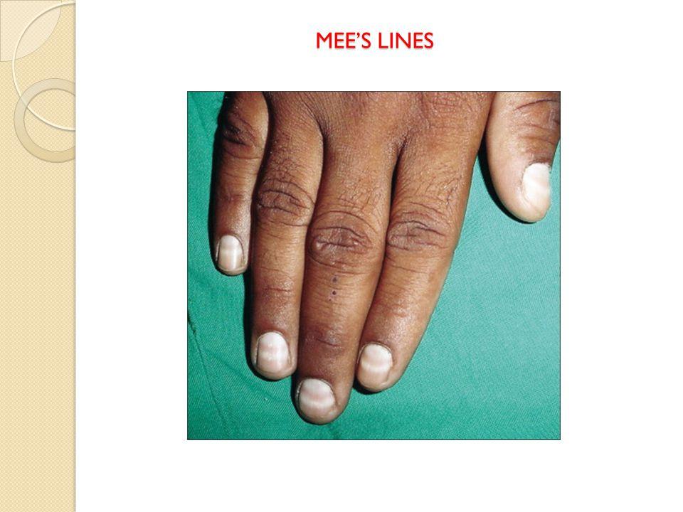 MEE'S LINES