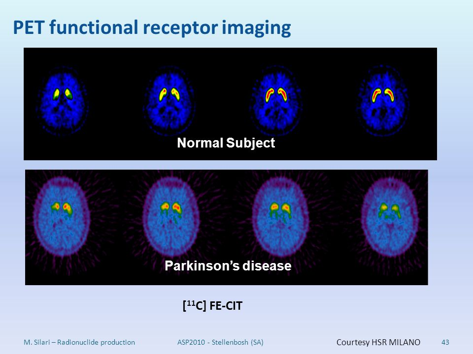PET functional receptor imaging