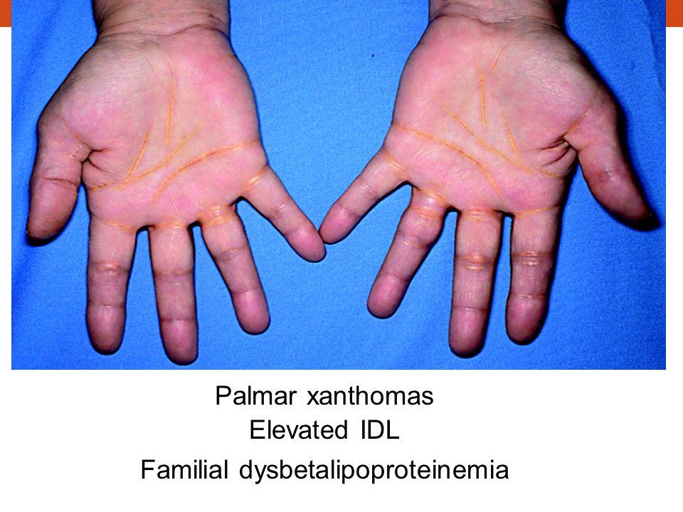 Familial dysbetalipoproteinemia