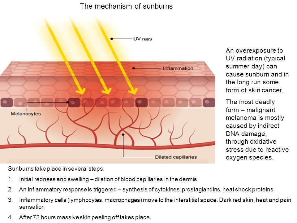 The mechanism of sunburns