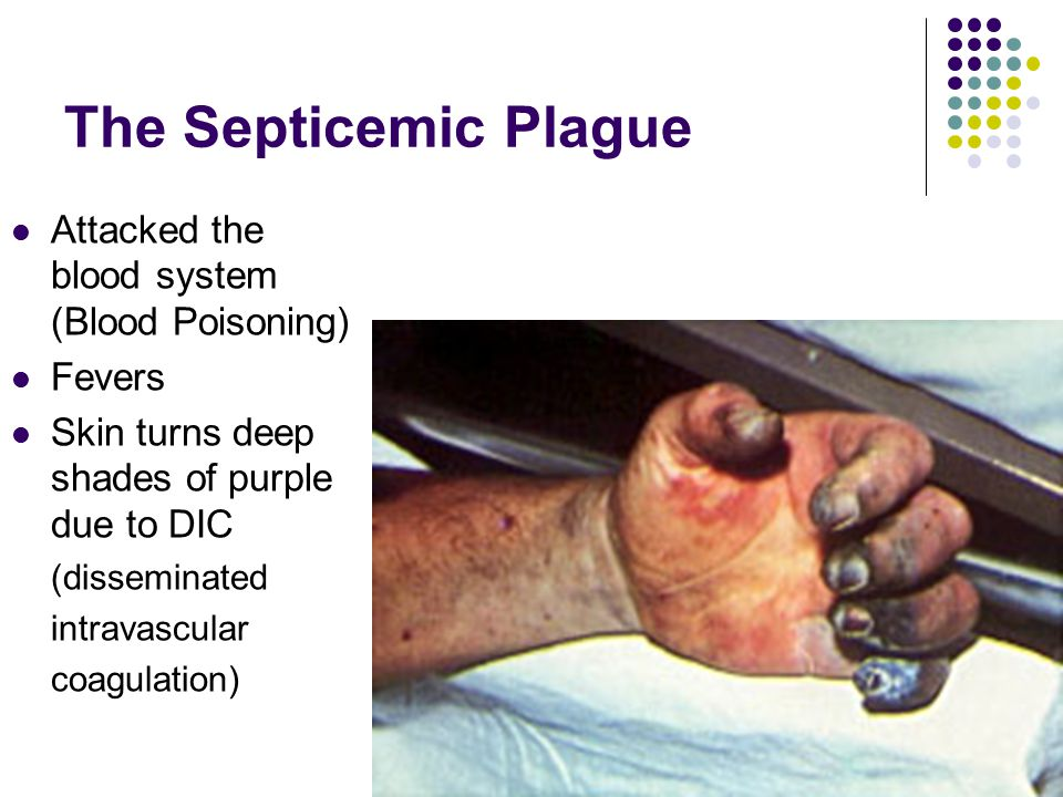 The Septicemic Plague Attacked the blood system (Blood Poisoning)